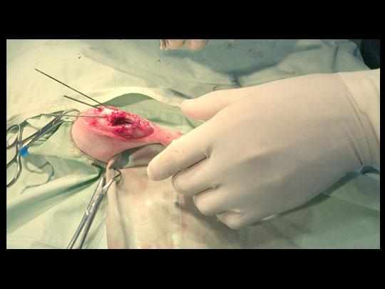 手術状況2